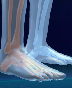 Feet - Cascade Orthotics Calgary